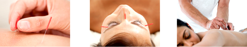 Duluth Acupuncture Benfits
